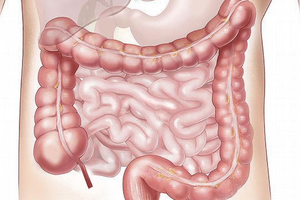 Intestine Mast Cell 360