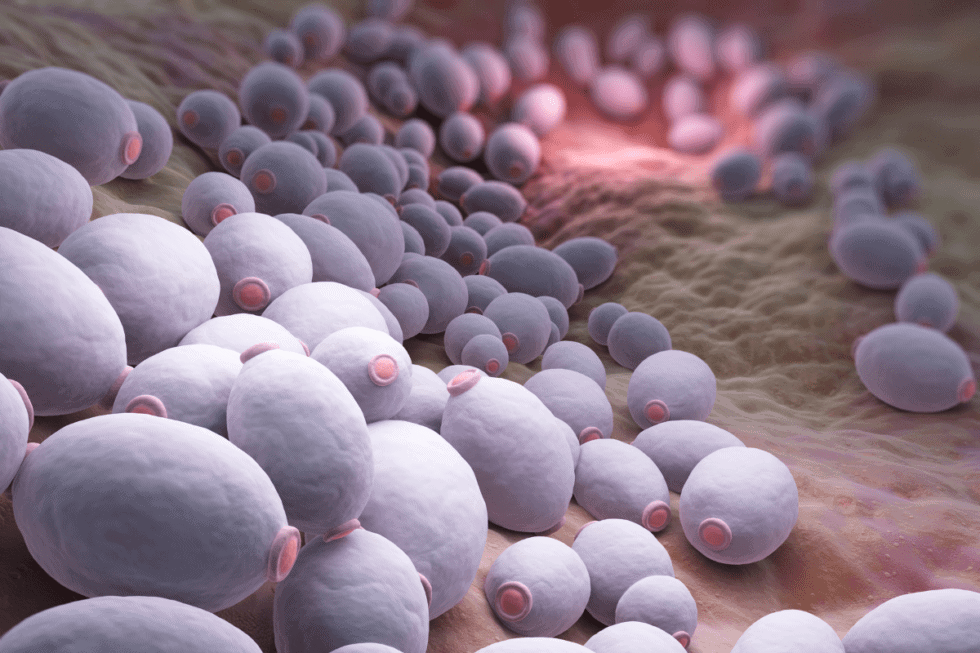 What to know about Candida when you have Mast Cell Activation Syndrome Histamine Intolerance